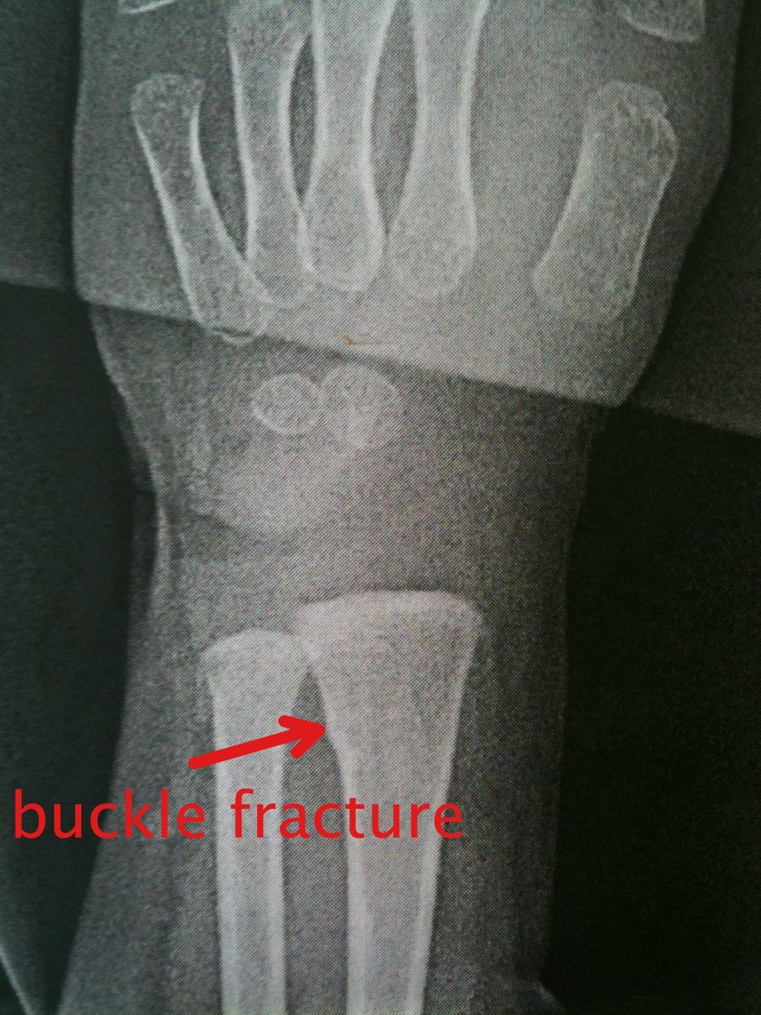 buckle fracture, broken wrist