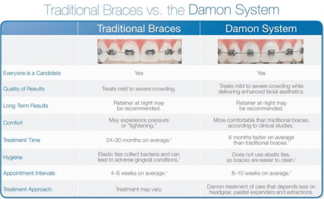 damon braces, damon system